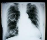 13910490-rayons-x-de-poumon-humain